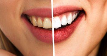 denti bianchi